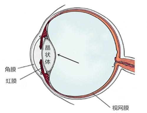 """昆明希玛眼科:不要怪身体没""""警告""""你,白内障初期有这五大症状"""
