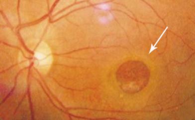 """希玛昆明眼科医院:此""""黄斑""""非""""皮肤斑"""",如""""黄斑""""出现裂孔可能会影响视力"""