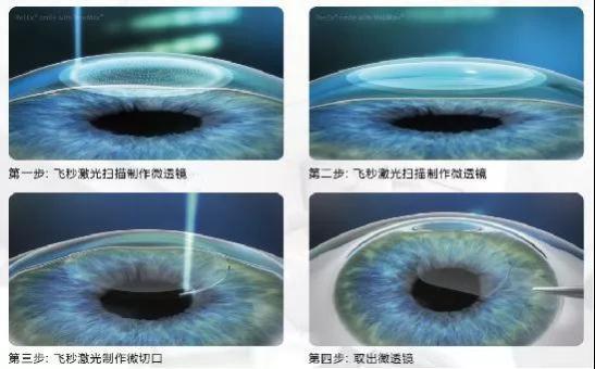 同为激光手术,昆明眼科医院做全飞秒和半飞秒差别在哪