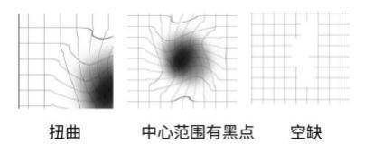 视力莫名出现扭曲、黑点、空缺。昆明眼科医院:黄斑变性的预兆