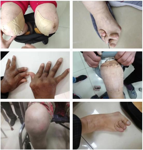 【通知】济南中医风湿病医院开展风湿病